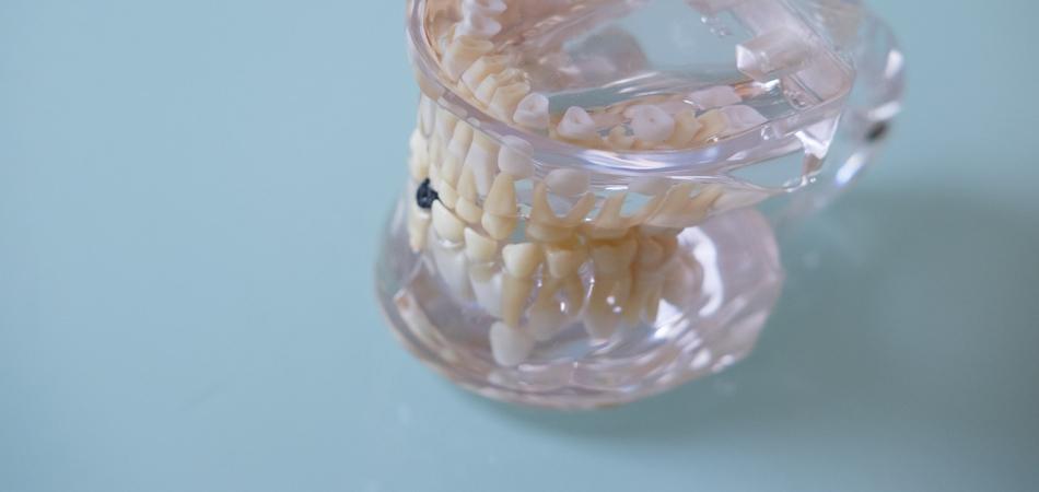 Zahnarzt Sankt Augustin ++ Parodontologie
